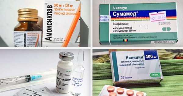 Причины, симптомы, тактика лечения и основные группы антибиотиков, назначаемых при циститах у детей