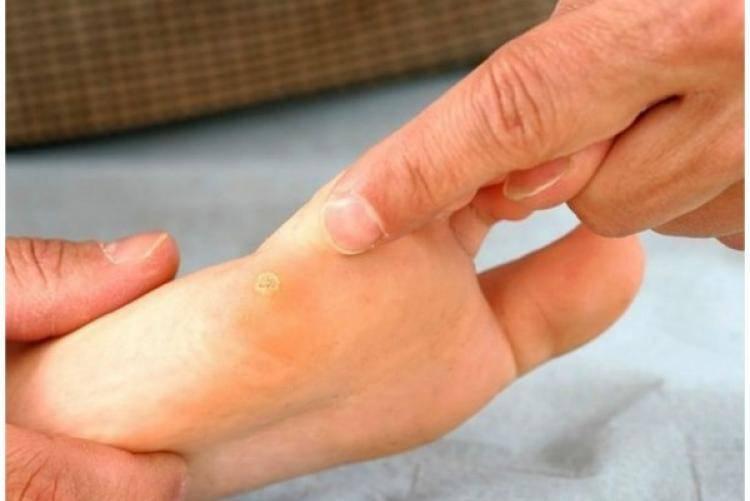 Подошвенная бородавка у ребенка на стопе: лечение в домашних условиях и удаление в клинике