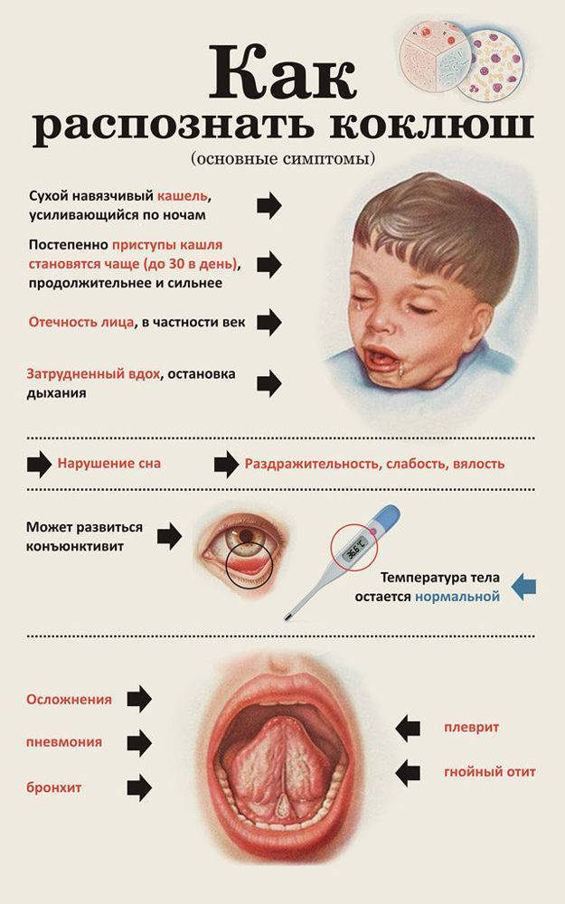Симптомы коклюша у детей: лечение по комаровскому