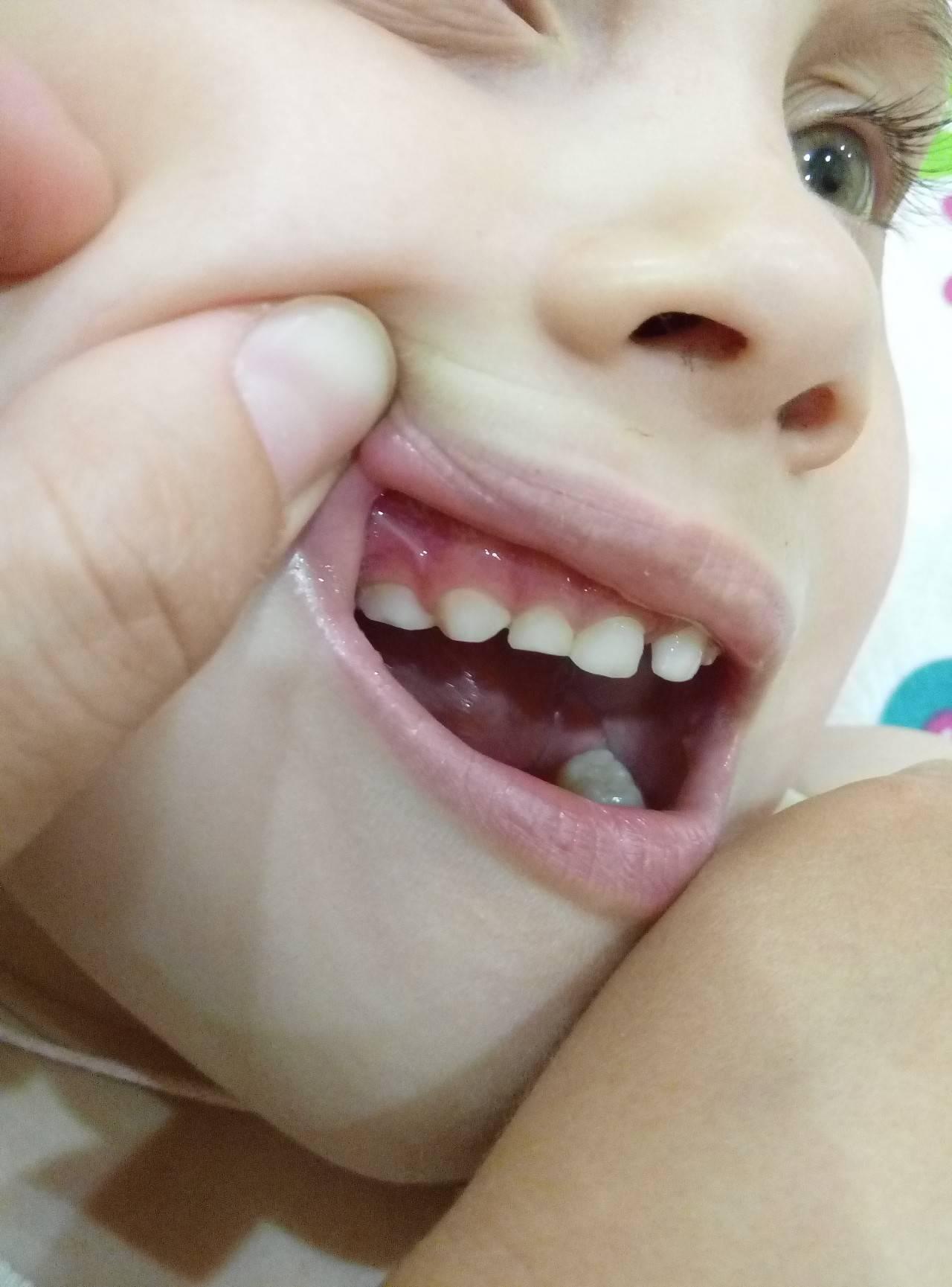 Синяя десна при прорезывании зубов у ребенка: гематома, синяк, шишка, лезет зуб.