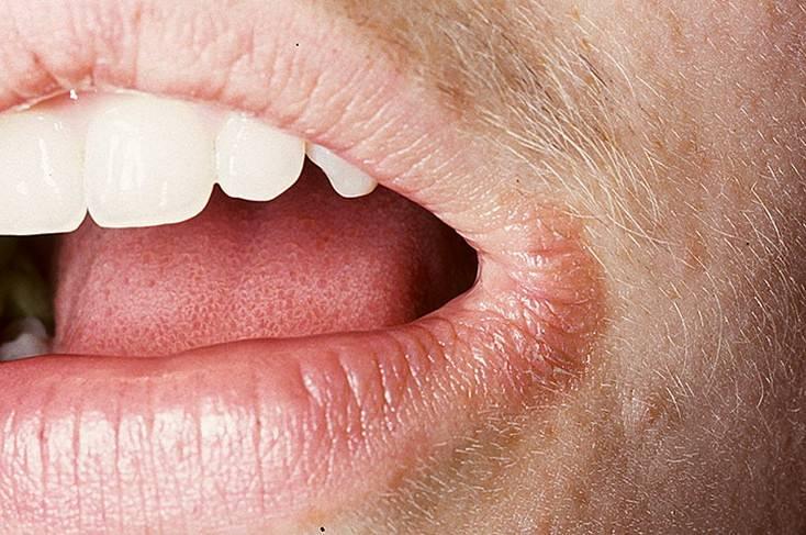Стоматит на губе – виды, симптомы и лечение заболевания