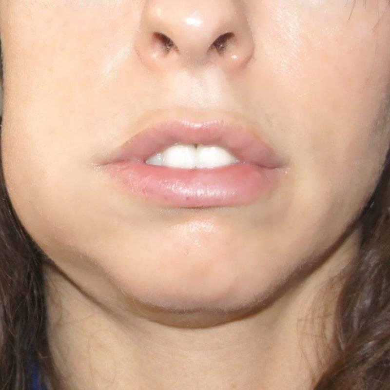 Болит щека у ребёнка, но зуб не болит — возможные причины