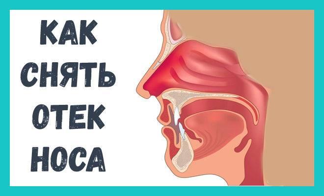 Отек слизистой носа у ребенка лечение комаровский - ответ медика