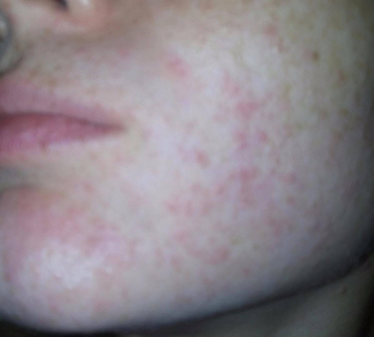 Сыпь на носу у ребенка фото с пояснениями