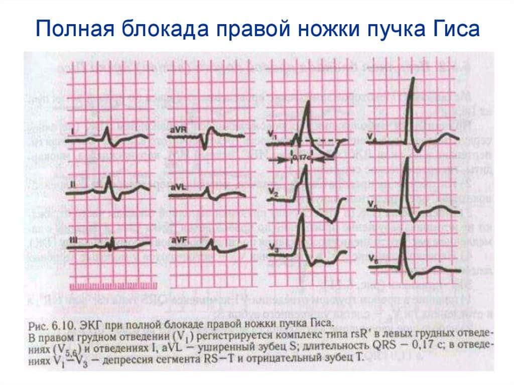 Экг у ребенка неполная блокада правой ножки пучка гиса - wikicardiolog.ru