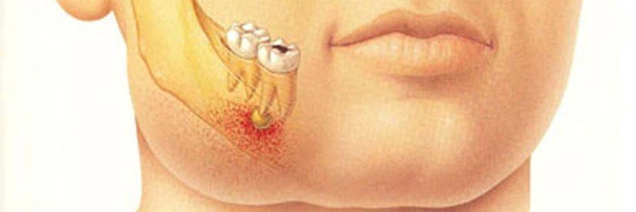 Абсцесс на десне у ребенка: фото, причины, чем опасен, как убрать