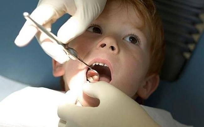 Лечение пульпита молочных и постоянных зубов у детей в москве