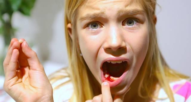 Как вырвать молочный зуб у ребенка в домашних условиях без боли?