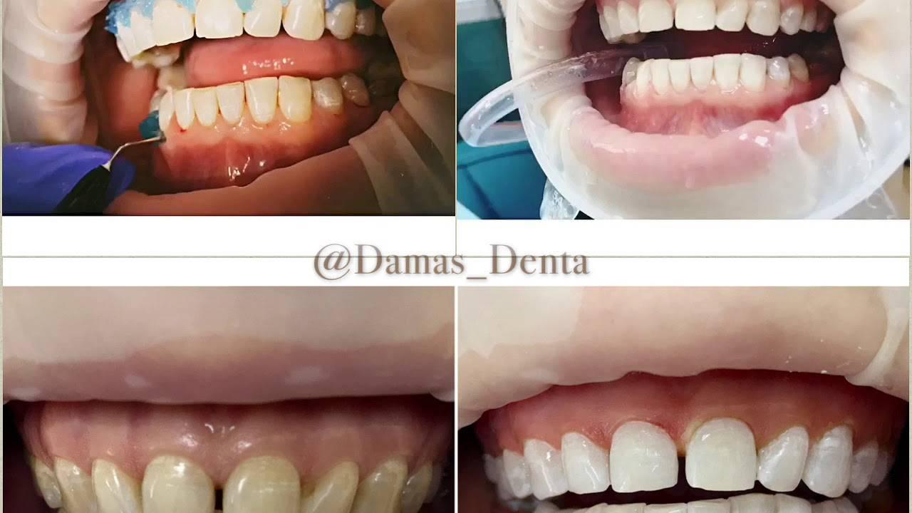 Фторирование зубов, виды, особенности, показания и противопоказания