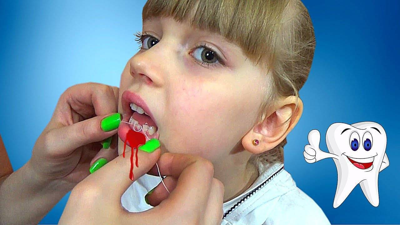 Как ребенку безболезненно вырвать зуб дома - советы стоматологов