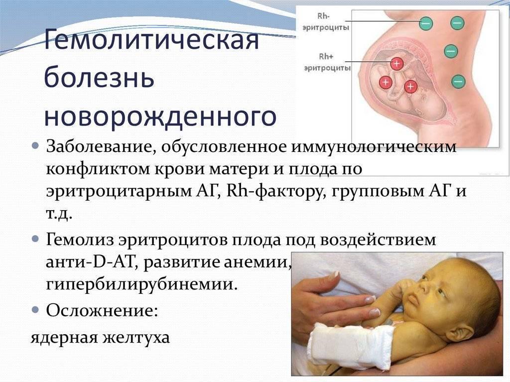 Гемолитическая болезнь новорожденных — симптомы, лечение