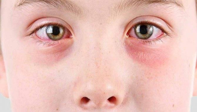 Аллергия на глазах: чем лечить, причины аллергической реакции, первые признаки и симптомы