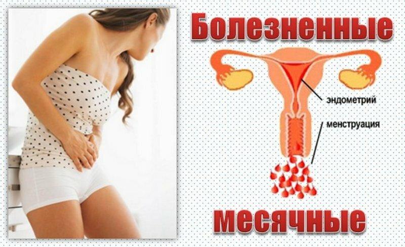 Менструальная мигрень: причины и лечение мигрени при месячных