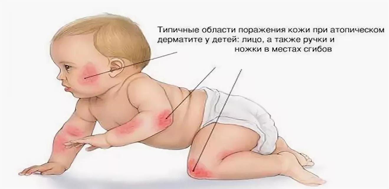 Как отличить потницу от аллергии у новорожденного ребенка