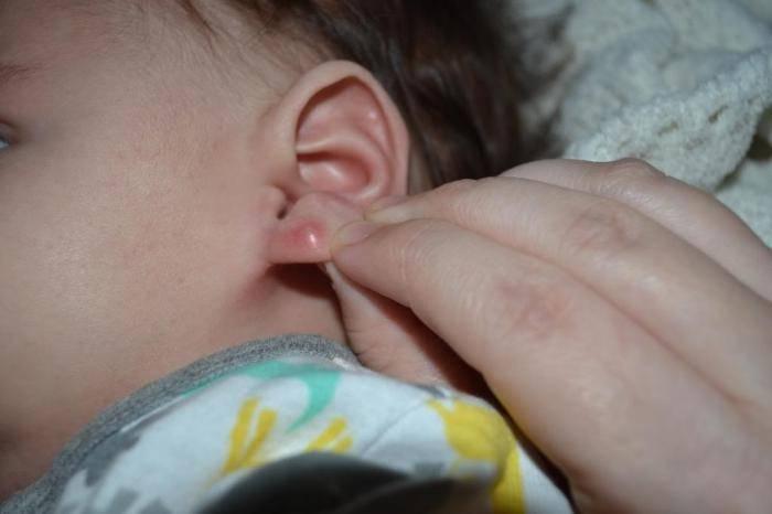 Воспалилось ухо после прокола что делать что бы вылечить мочку или хрящ