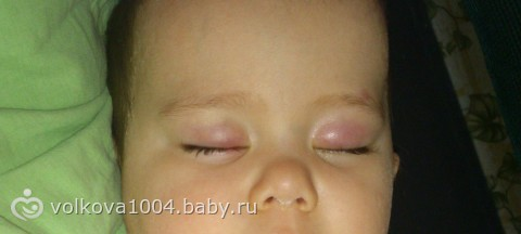 У ребенка опухло верхнее веко: причины, что делать если появилось покраснение