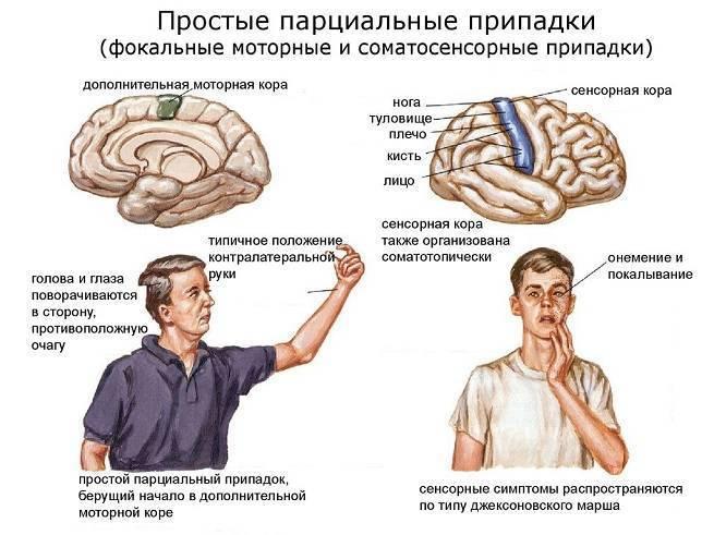 Характер течения идиопатической эпилепсии у взрослых и детей