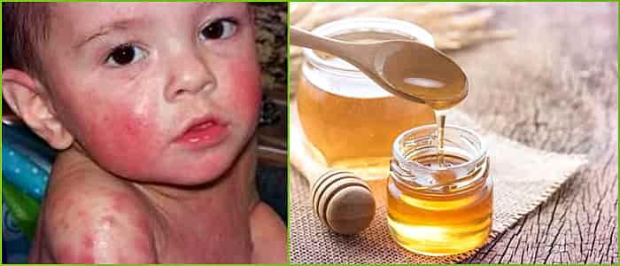 Аллергия у грудничков на витамин д симптомы