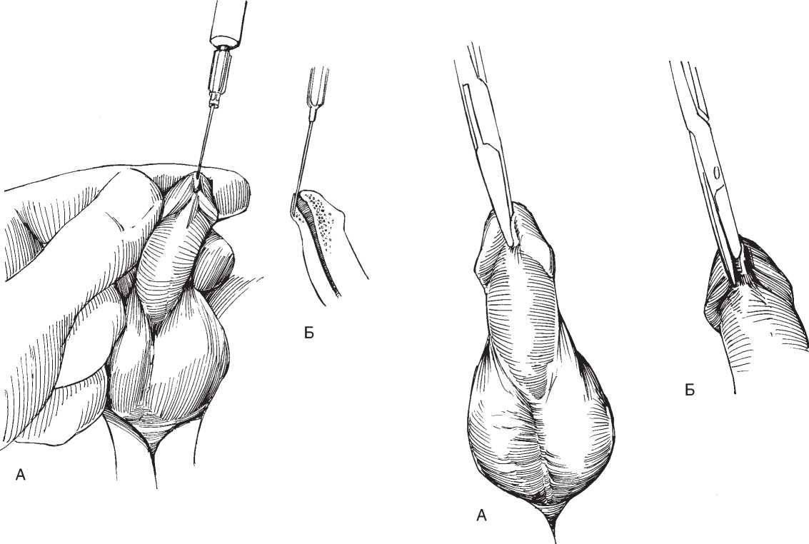 Фимоз у мальчиков (44 фото): лечение в домашних условиях, до и после операции, физиологическая и рубцовая форма у грудничков и новорожденных
