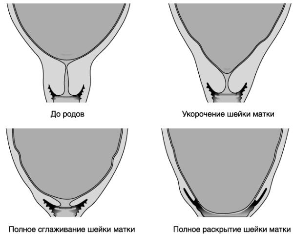 Внутренний зев воронкообразной формы