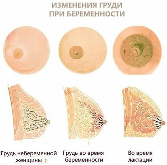 Набухает грудь при беременности: на каком сроке беременности