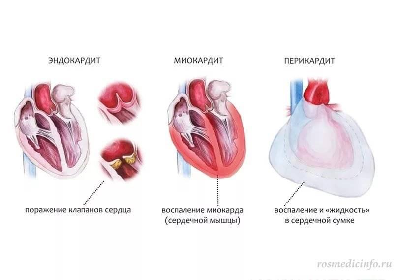 Миокардит у ребенка: диагностика, симптомы и лечение. детский кардиологический центр