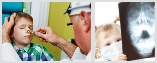 Ушиб носа у ребенка: что делать, симптомы, последствия, лечение, первая помощь