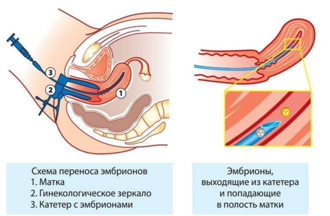 Внематочная беременность после процедуры эко: возможно ли это, какие причины и признаки?