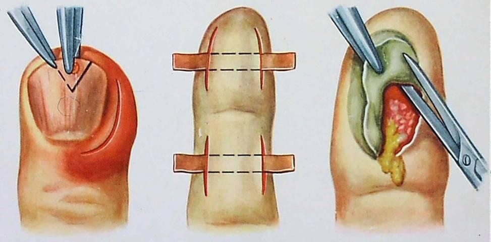 Лечение гнойной раны на ноге у ребенка