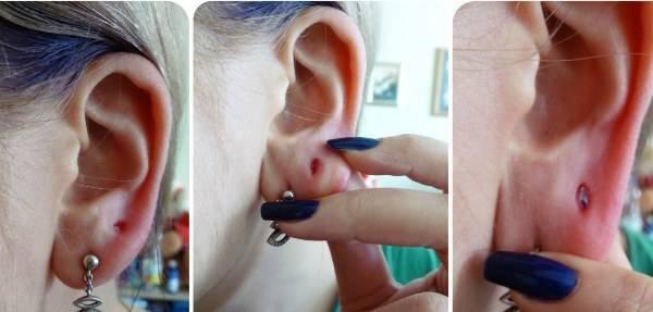 Что делать, если у ребенка гноятся уши после прокола и долго не заживают?