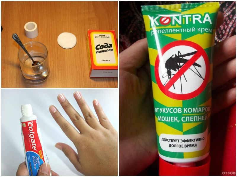 Укусы домашних насекомых