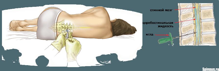После эпидуралки болит позвоночник что делать