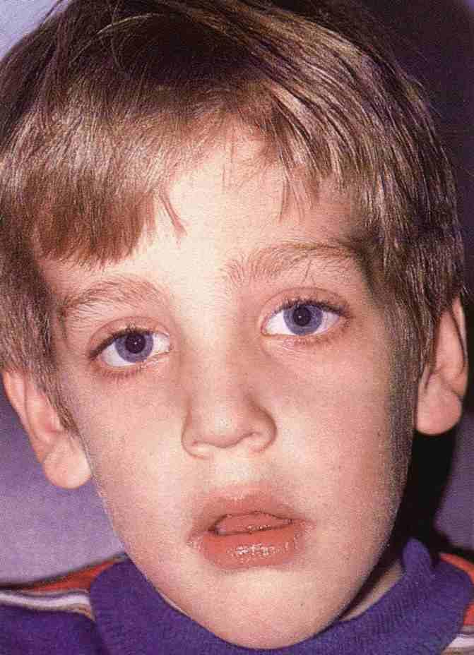 Острый аденоидит: подробнее о заболевании и его лечении