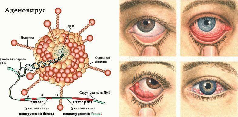 Как лечить аденовирусную инфекцию у ребенка и какие ее симптомы