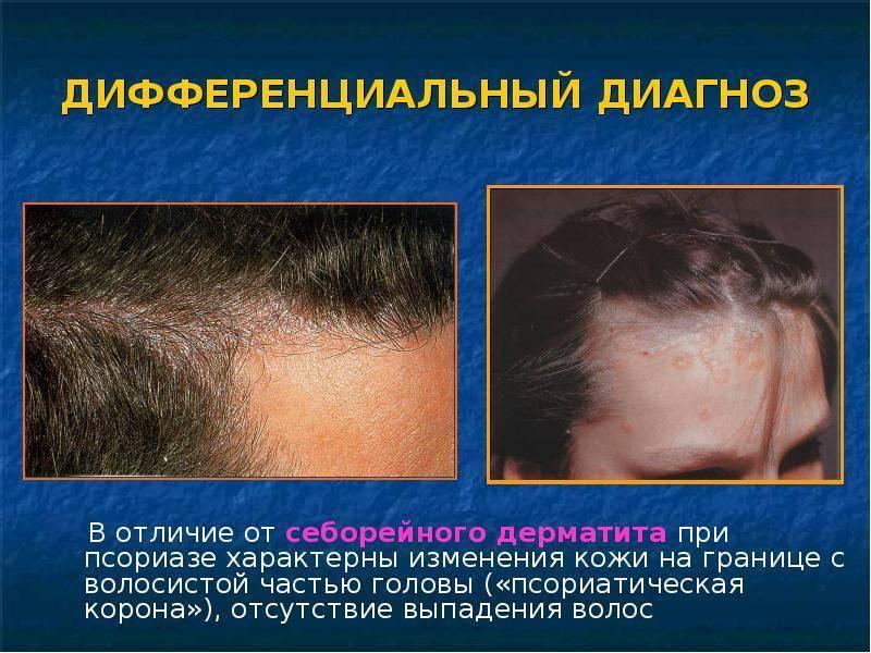 Себорея: 7 шампуней для лечения себорейного дерматита кожи головы - лучшие