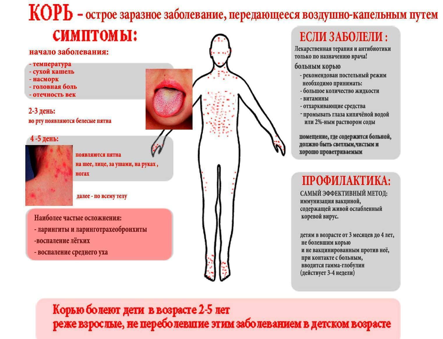 Как проявляется корь у детей: симптомы и методы лечения