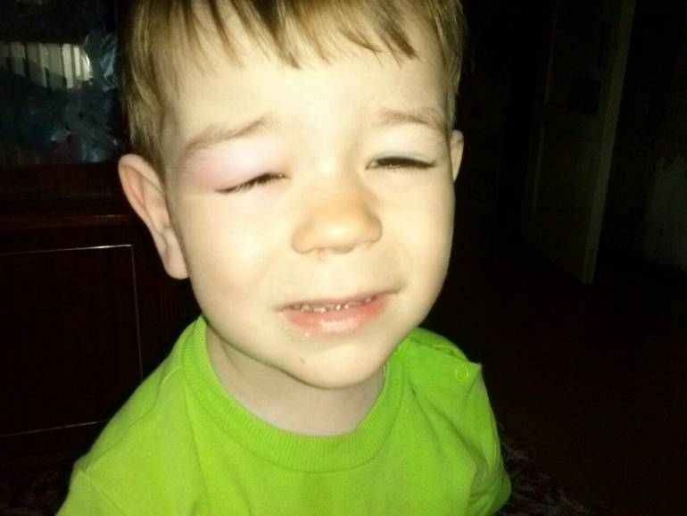 Что делать если опух глаз от укуса комара у ребенка