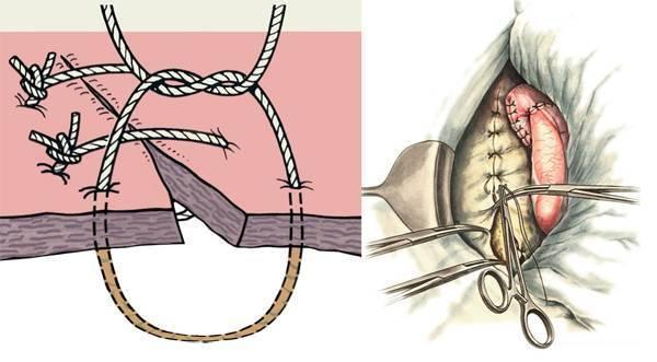 Косметические швы после родов