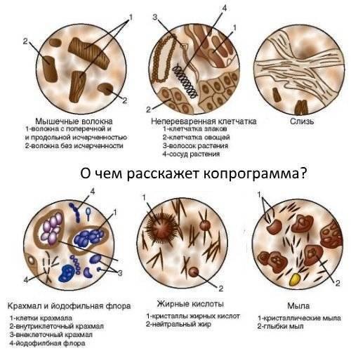 Бактерии в кале: что значат йодофильные неферментирующие бактерии у ребенка и взрослого