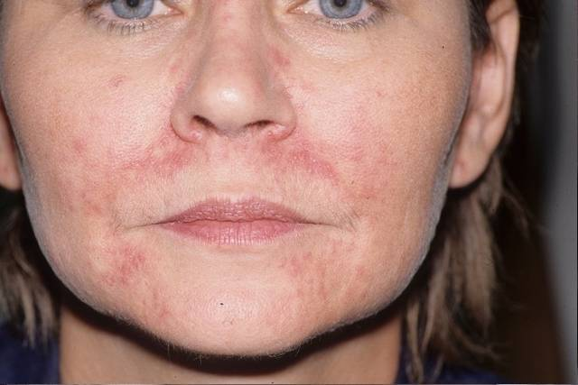 Симптомы перорального дерматита у детей на лице и эффективные способы лечения