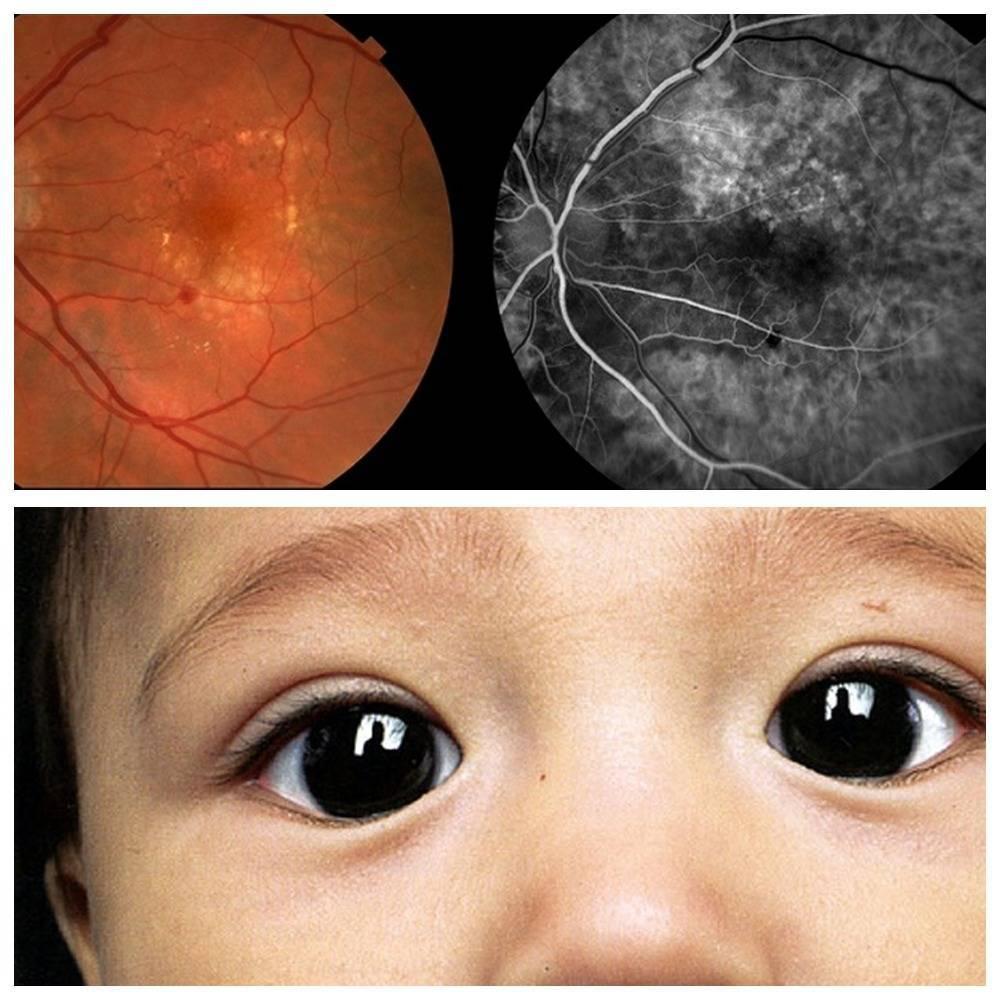 Ангиопатия сетчатки глаза у ребенка - что это такое и как лечится?