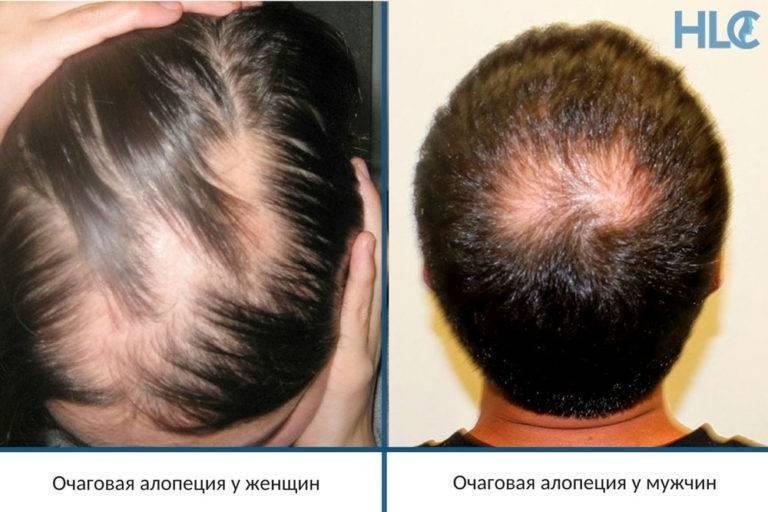 Могут ли от простатита выпадать волосы закалка при простатите