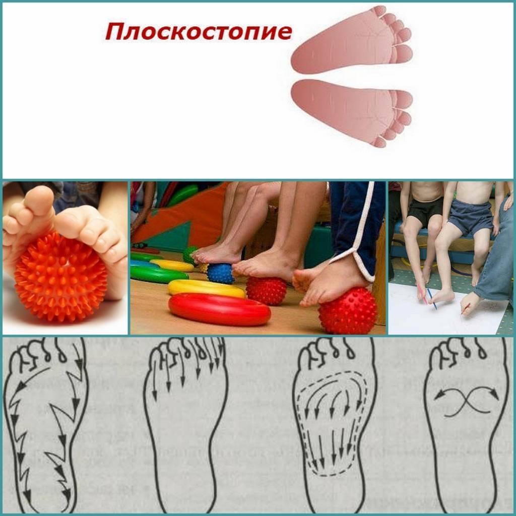 Лфк и упражнения при плоскостопии у детей дошкольного возраста
