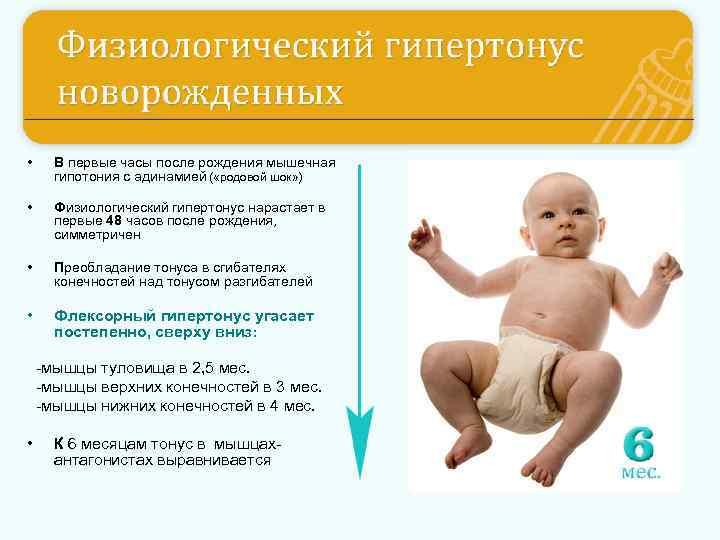 Тонус у новорожденных - повышенный, пониженный тонус мышц у новорожденных