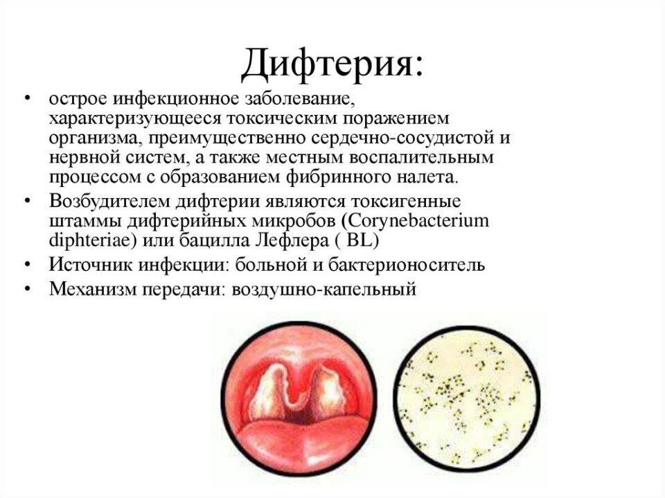 Дифтерия у детей: симптомы и лечение, клинические рекомендации