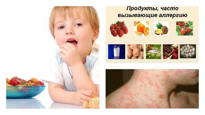 Гастроинтестинальная форма аллергии у детей