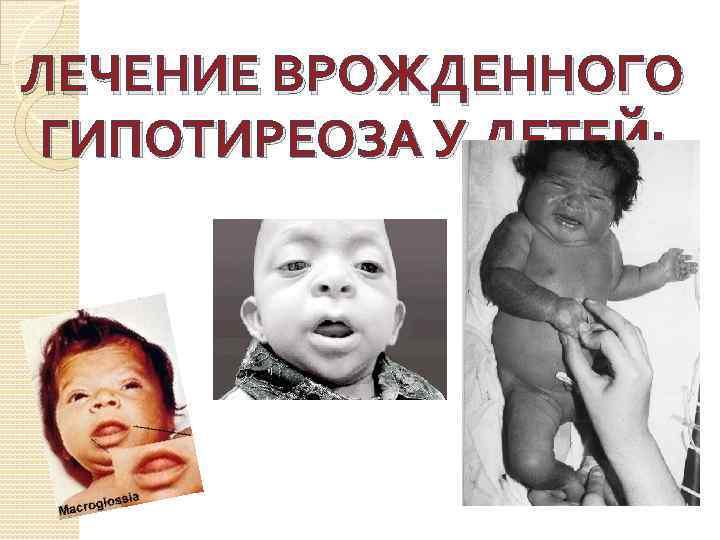 Гипотиреоз у детей (врожденный и приобретенный): симптомы и лечение