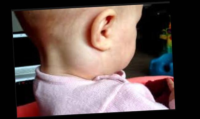 Как лечить лимфоузлы на шее у ребенка