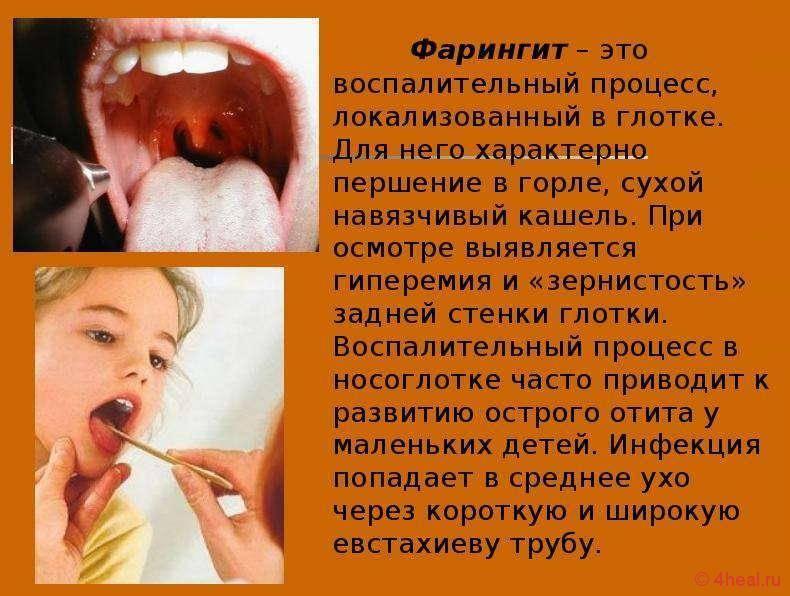 Першение в горле кашель лечение. чем лечить першение в горле | здоровье человека