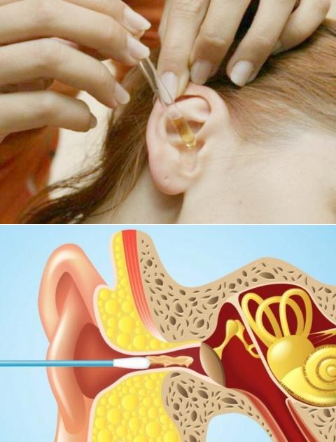 Серная пробка у ребенка 3 лет. как убрать серные пробки в ушах у детей? воздействие перекисью и специальными мазями